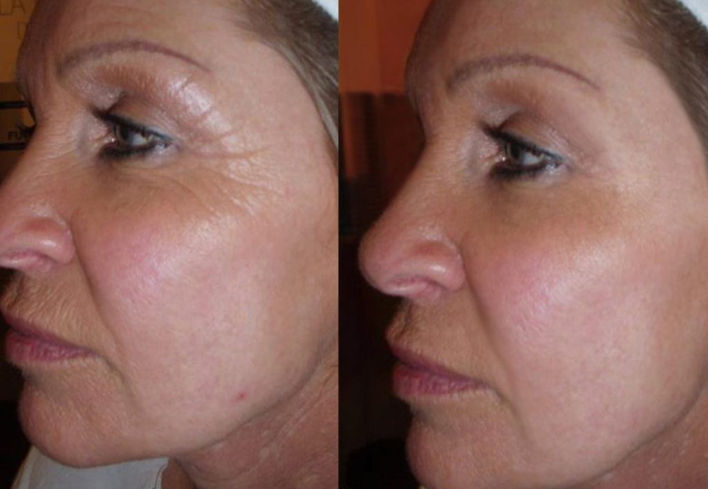 What is Cryo-Facial and Its Benefits - The before and after of a Cryo-Facial treatment.